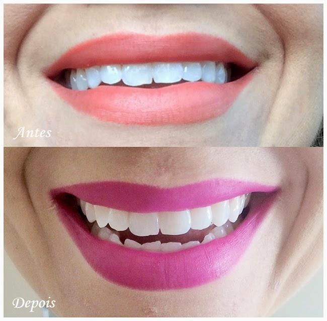 Tag Como Branquear Os Dentes Com Violeta Genciana