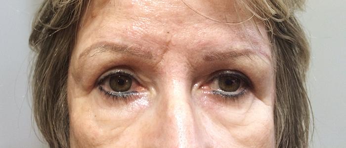 Correção-de-cor-de-sobrancelha-com técnica-hiper-realista (19)
