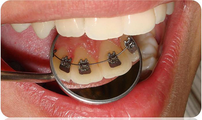 Tipos-de-aparelhos-dentes-e-suas-funçoes-NKS-odontologia