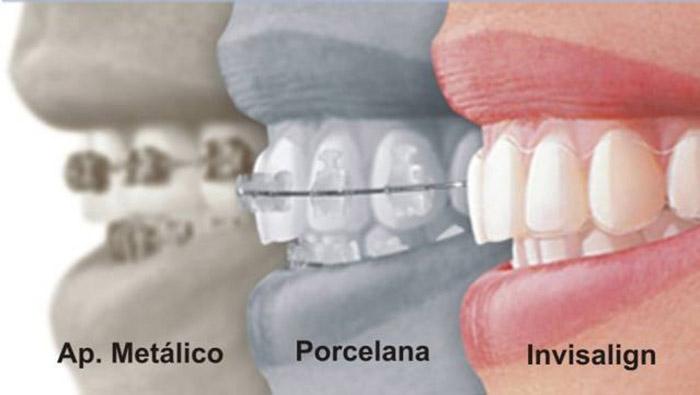 comparativo-entre-aparelhos-de-dente