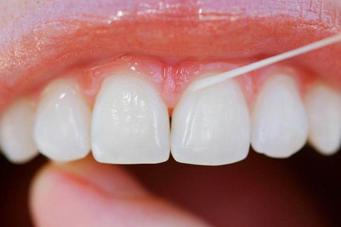 Como usar corretamente o fio dental