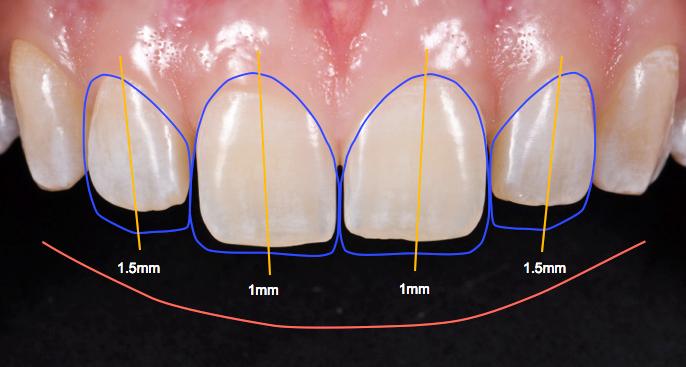 Sorriso perfeito com tecnologia 3d Odontologia
