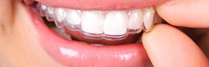 Odontologia, auto estima e marketing pessoal