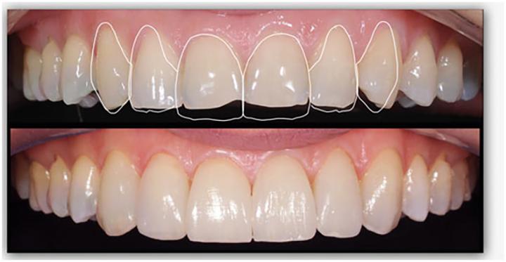 Ortodontia, auto estima e imagem pessoal