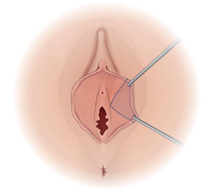 ninfoplastia cirurgia intima feminina