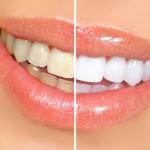 Odontologia e o Marketing Pessoal