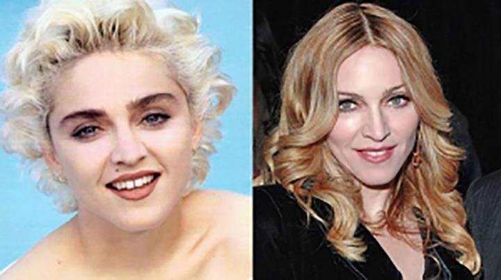 Resultado de imagem para famosos brasileiros que fizeram bichectomia