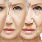 Lifting Facial: Rejuvenecimento do Rosto