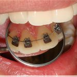 O Que é Ortodontia Lingual? Machuca?